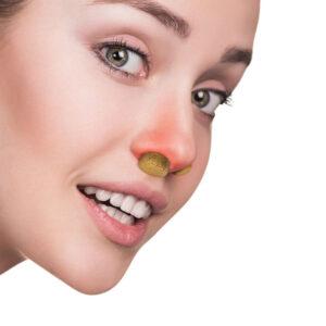 Как да се отървем от запушен нос?